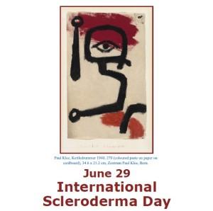 29 giugno … oggi anni fa  – Giornata Sclerodermia – Women for #Expo2015